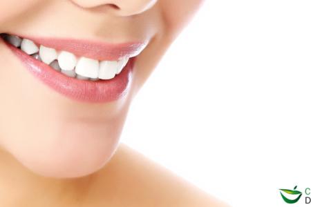 chica con dientes blancos