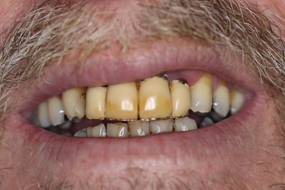 cirugia-bucal-e-implantologia-caso-1-foto-1