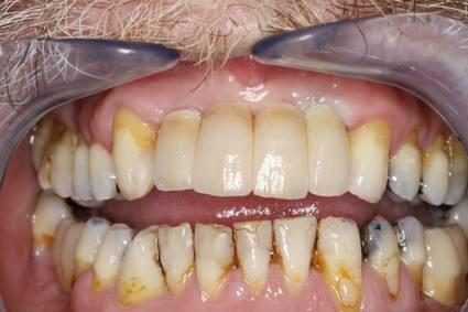 cirugia-bucal-e-implantologia-caso-1-foto-4