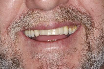 cirugia-bucal-e-implantologia-caso-1-foto-5