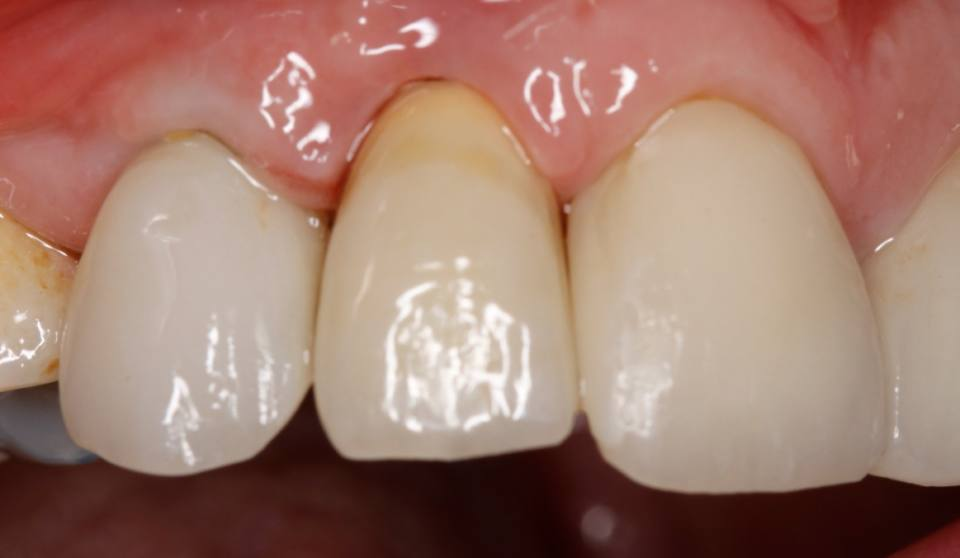 cirugia-bucal-e-implantologia-caso-2-foto-2