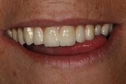 cirugia-bucal-e-implantologia-caso-6-foto-3