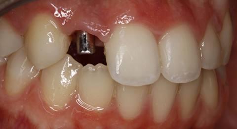 cirugia-bucal-e-implantologia-caso-7-foto-1