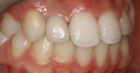 cirugia-bucal-e-implantologia-caso-7-foto-2