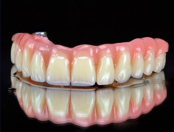dientes-en-un-dia-foto-1