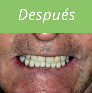 dientes-en-un-dia-foto-4