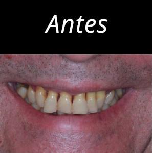 dientes-en-un-dia-foto-5