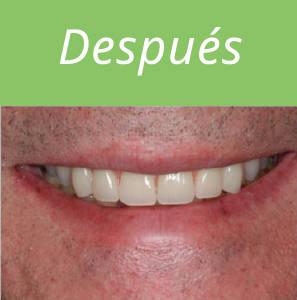 dientes-en-un-dia-foto-6