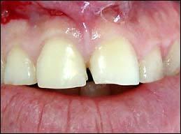 odontologia-conservadora-y-endodoncia-caso-1-foto-1