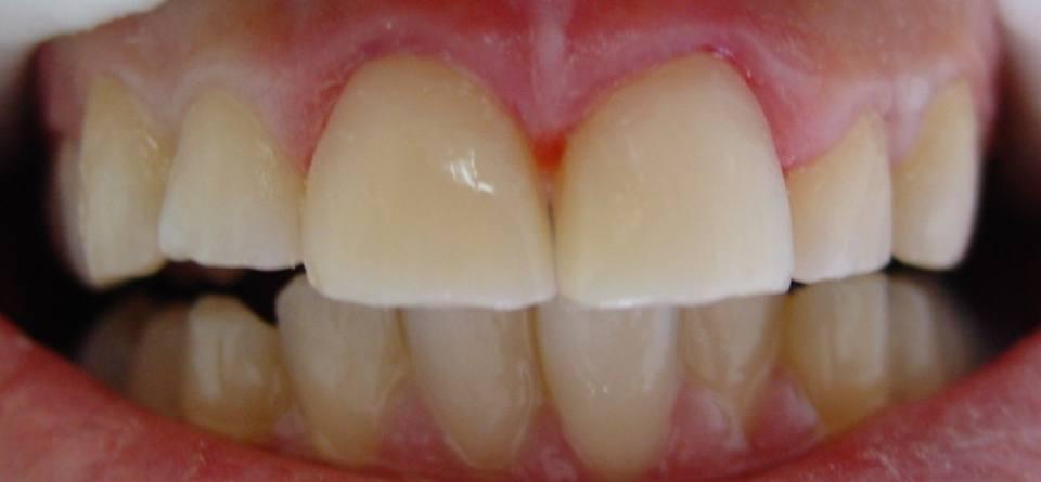 odontologia-conservadora-y-endodoncia-caso-1-foto-2