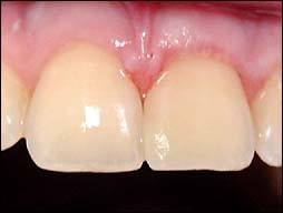 odontologia-conservadora-y-endodoncia-caso-2-foto-2