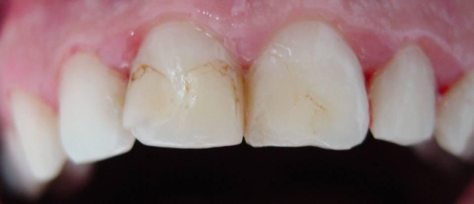 odontologia-conservadora-y-endodoncia-caso-3-foto-1