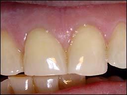 odontologia-conservadora-y-endodoncia-caso-3-foto-2
