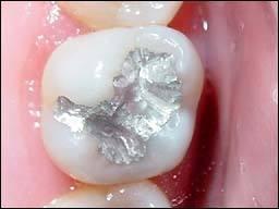 odontologia-conservadora-y-endodoncia-caso-4-foto-2