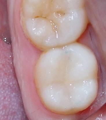 odontologia-conservadora-y-endodoncia-caso-4-foto-3