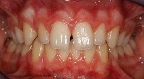 ortodoncia-y-odontopediatria-caso-1-foto-1
