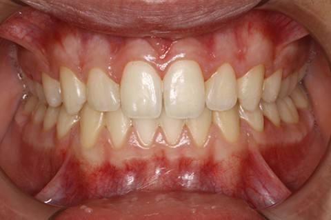 ortodoncia-y-odontopediatria-caso-1-foto-3