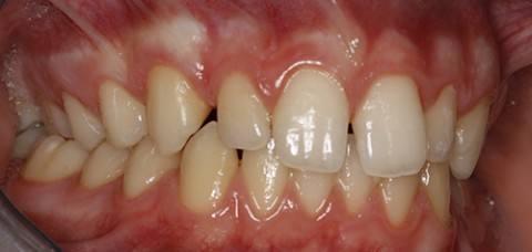 ortodoncia-y-odontopediatria-caso-1-foto-4