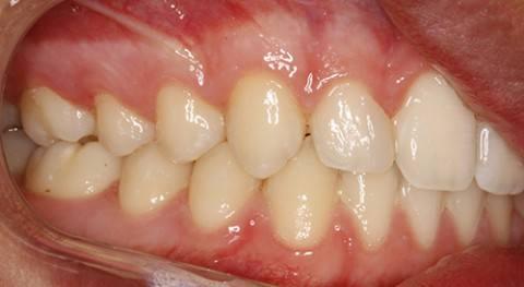 ortodoncia-y-odontopediatria-caso-1-foto-5