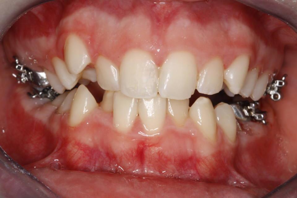ortodoncia-y-odontopediatria-caso-7-foto-1