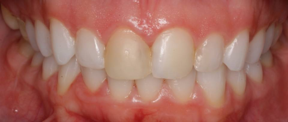 ortodoncia-y-odontopediatria-caso-7-foto-2