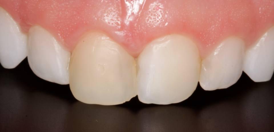 ortodoncia-y-odontopediatria-caso-7-foto-3