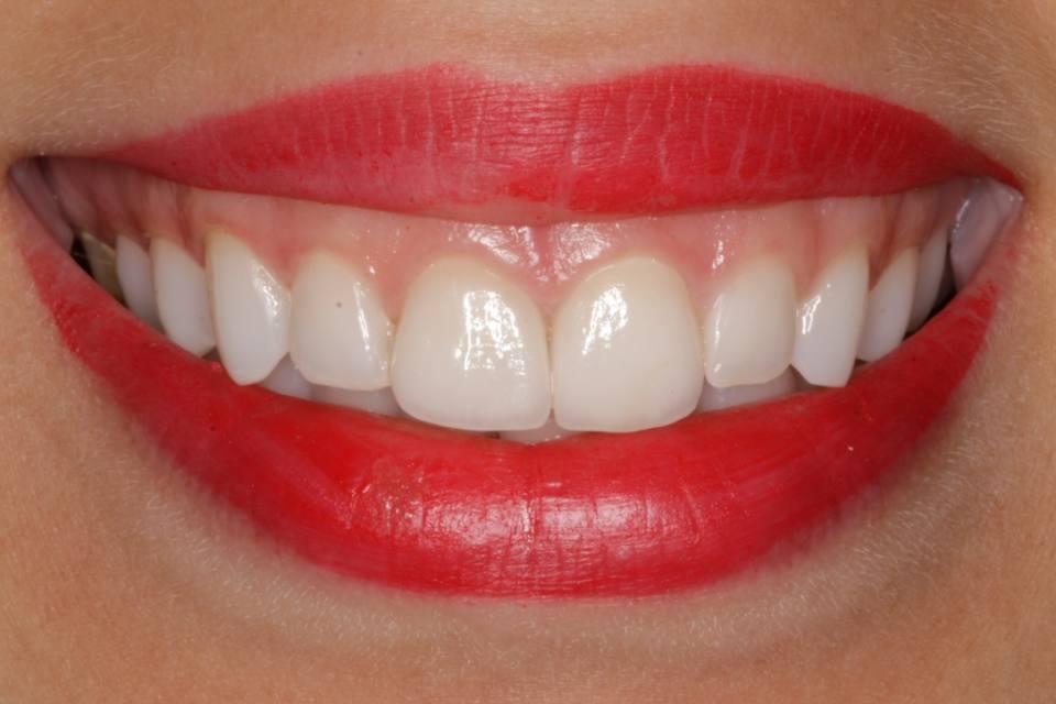 ortodoncia-y-odontopediatria-caso-7-foto-6