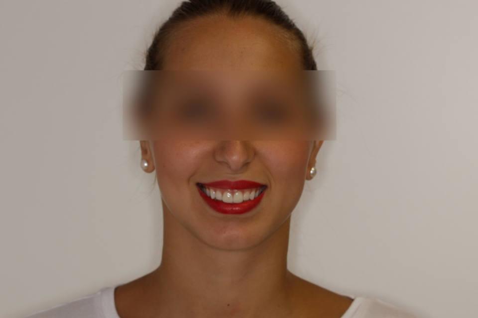 ortodoncia-y-odontopediatria-caso-7-foto-7