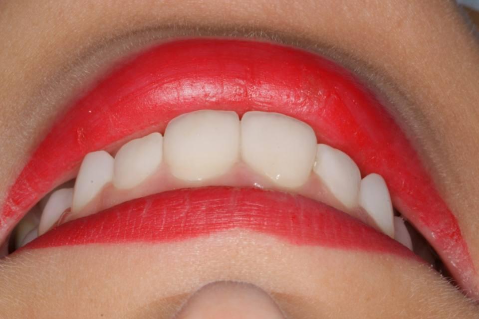 ortodoncia-y-odontopediatria-caso-7-foto-8