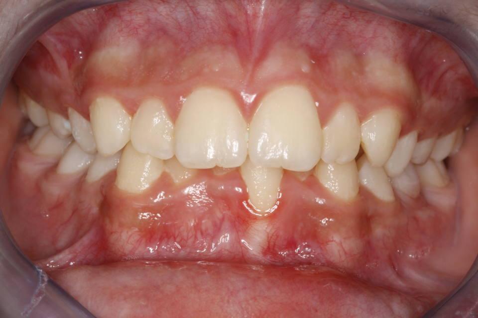 ortodoncia-y-odontopediatria-caso-8-foto-1