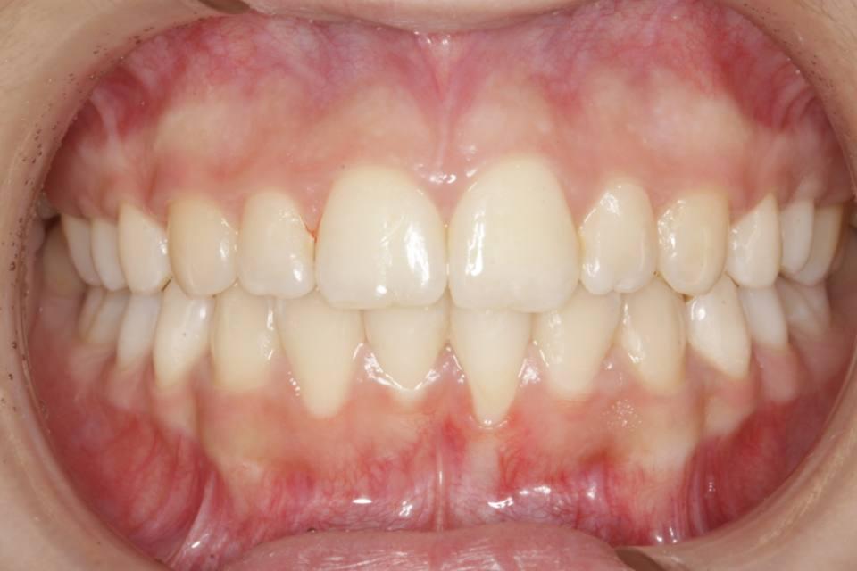 ortodoncia-y-odontopediatria-caso-8-foto-2