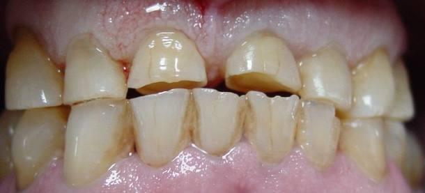 protesis-caso-4-foto-1